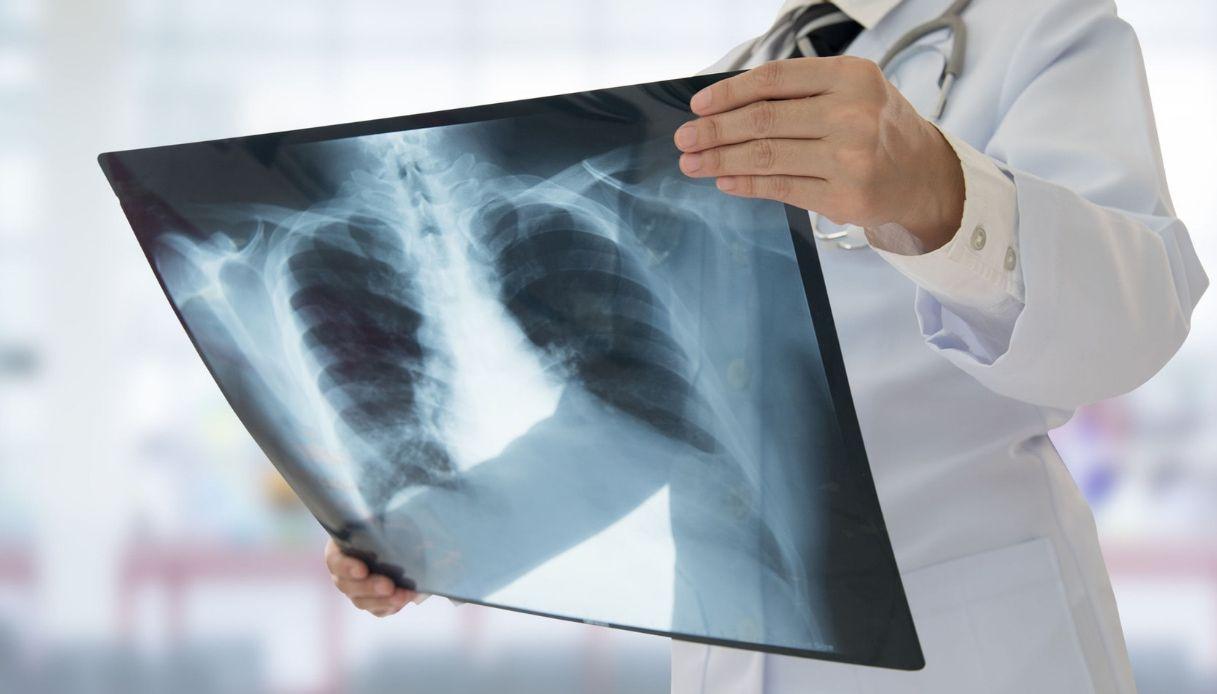 Sospetto caso di tubercolosi. Psicosi tra i coetanei