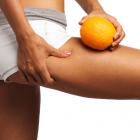 cellulite, pelle a buccia d'arancia come contrastarla